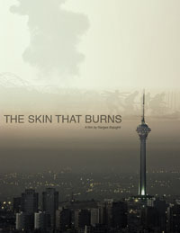 The Skin That Burns
